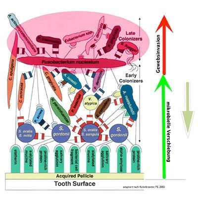 tooth surface vockner dr. helmut vockner zahnarzt