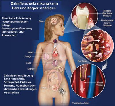 Forschung Zahnfleischprobleme Dr. Vockner Zahnarzt Saalfelden