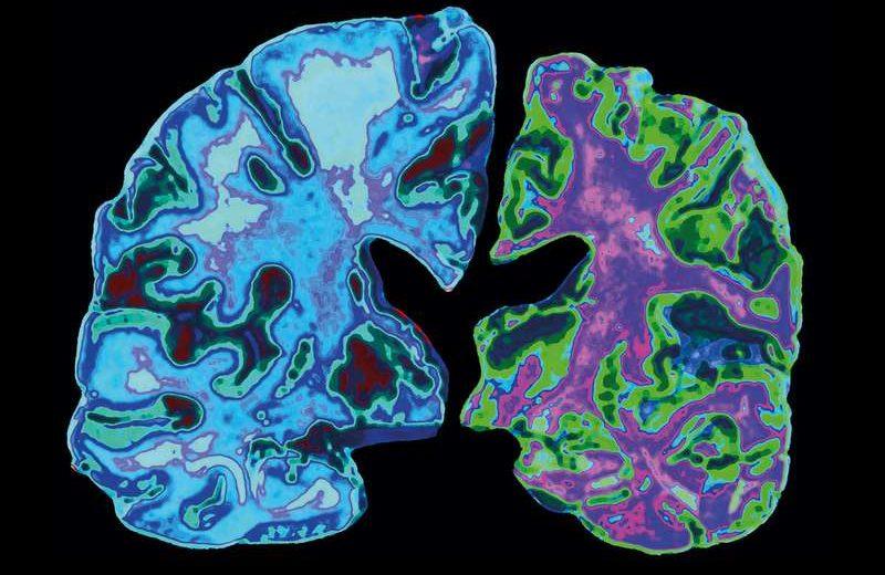 Die Alzheimer-Krankheit hat Neuronen in der rechten Gehirnhälfte zerstört