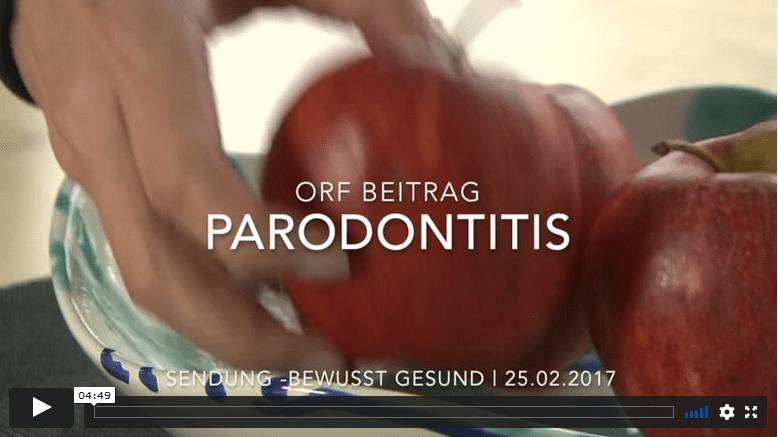 Video Parodontitis Patientin